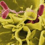 microscopic view of salmonella
